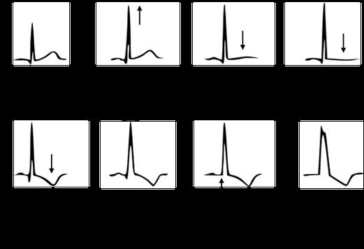 EKG Linkspräkordiale EKG-Veränderungen bei progressiver linksventrikulärer Hypertrophie