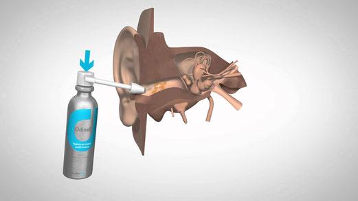 Spray de nettoyage de l'oreille pour enlever le cérumen