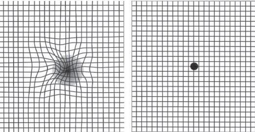 Grille d'Amsler pour tester une possible DMLA. Si les lignes  se courbent lorsque vous pointez le point vous souffrez peut-être de DMLA (à gauche il s'agit de la vision d'une personne souffrant de DMLA). Source : internet.