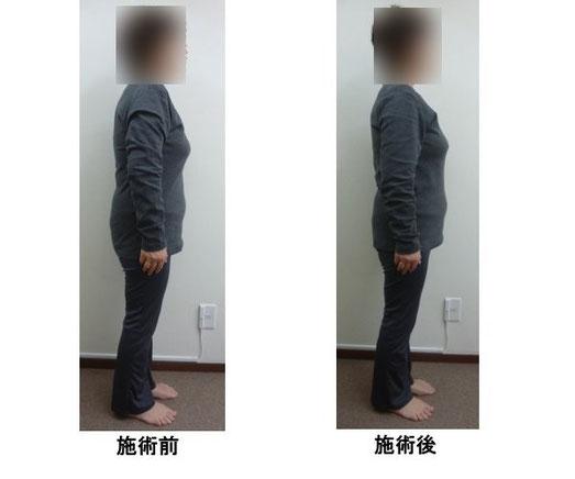 小平市70代女性後ろ写真 横