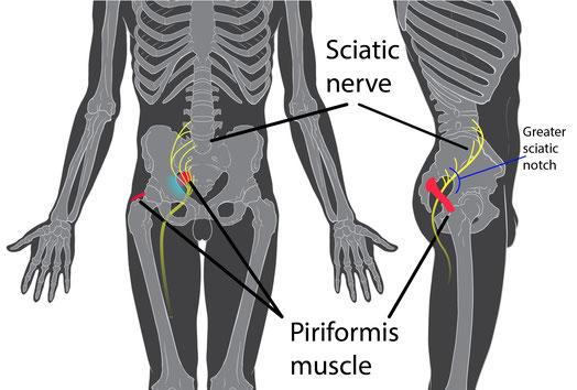 *Piriformis=梨状筋、Sciatice nerve=坐骨神経