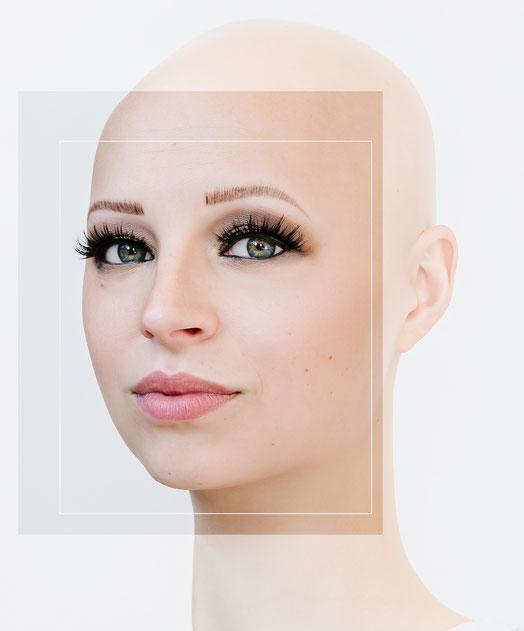 alopecia portrait de Marie
