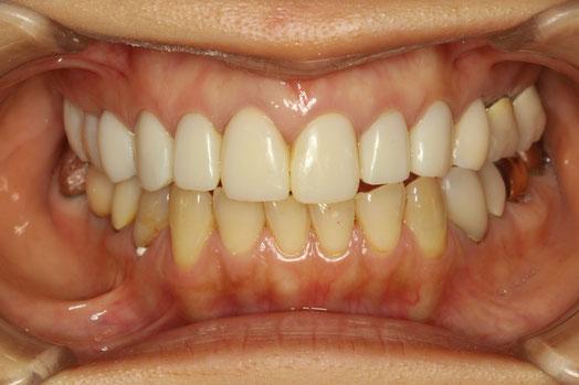 審美歯科の仮歯の調整