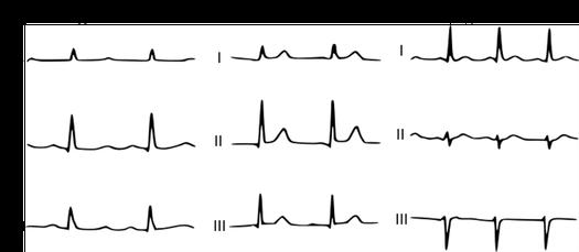 EKG Kalzium