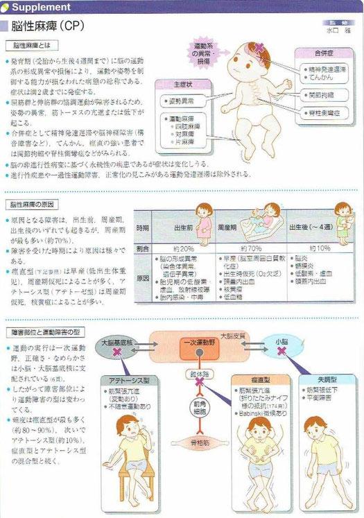 脳性麻痺とは運動や姿勢を制御する能力が損なわれた病態の総称とのことです。