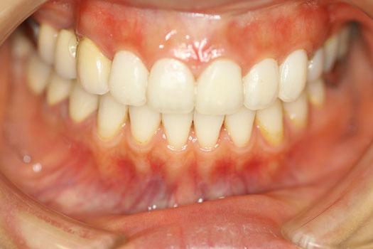 レイヤリングの仮歯 前歯