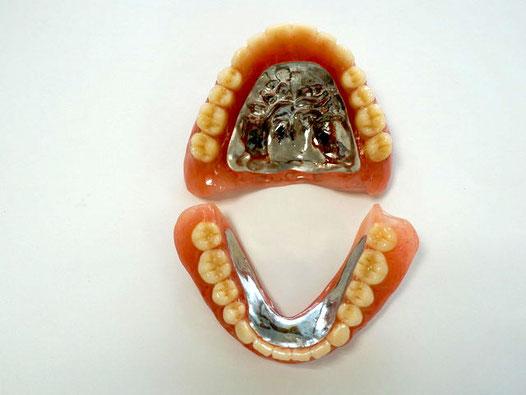 金属床入れ歯の上下