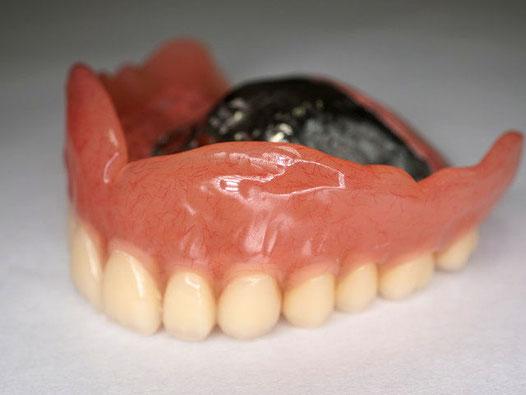 上あごの金属床入れ歯