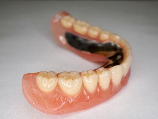 下あごの金属床入れ歯