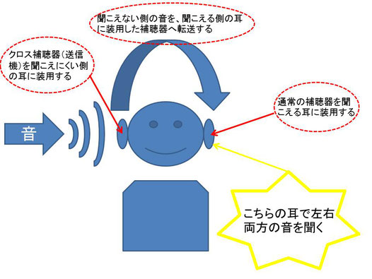 クロス(CROS)補聴器の仕組み