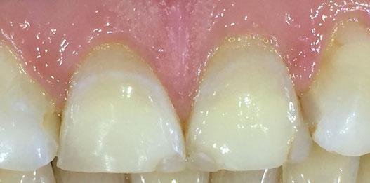Zahnreihe mit angebrochenen Schneidezähnen