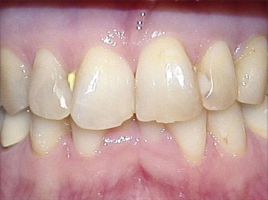 Zahnreihe mit defekten Schneidezähnen