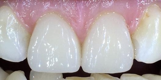 Zahnreihe mit perfekten Schneidezähnen