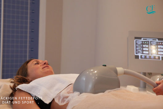 Fettpolsterbehandlung mit Kryolipolyse am Bauch bei Christina Friess Studio in Stuttgart