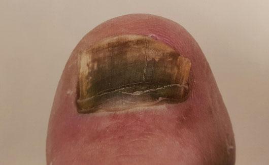 Dieser stark verfärbter Nägel deutet auf Nagelpilz hin.