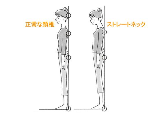ストレートネックと正常な頸椎のセルフチェック法