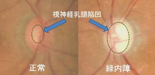 尼崎 眼科 緑内障 日帰り白内障手術 視神経乳頭