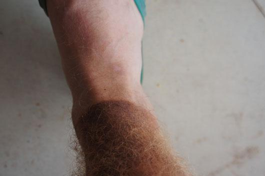 Mein Bein nach einem normalen Fahrradtag in Afrika