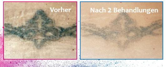 Tattooentfernung - vorher (links) und nach zwei Behandlungen