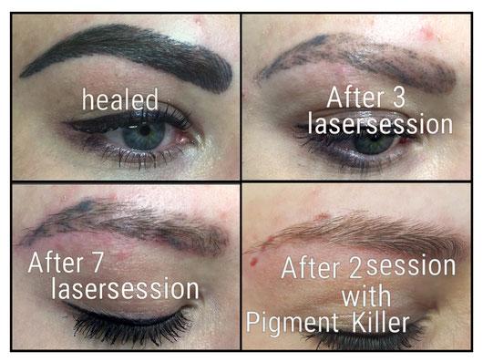 oben links: geheiltes PMU, oben rechts: nach zwei Laserbehandlungen, unten links: nach sieben Laserbehandlungen, unten rechts: nach zwei Behandlungen mit dem Pigmentkiller