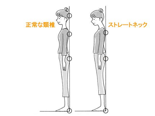 ストレートネック肩こりのセルフチェック法