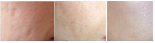 Behandlung Aknenarben an der Wange durch Fadenlifting vorher-nach 2 und nach 6 Monaten