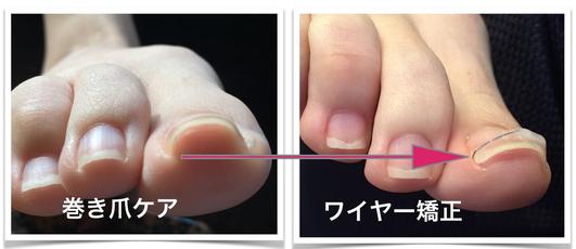 ※巻き爪事例、画像をクリック