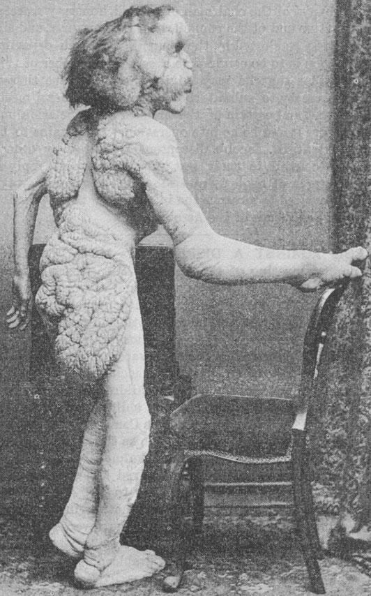 ※3:1888年のメリックの肖像写真