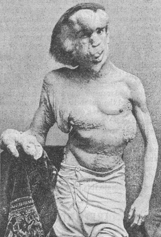 ※2:1889年のメリックの肖像写真
