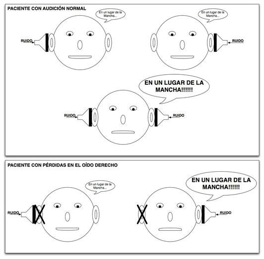 El test de Lombard, útil para detectar simulardores.