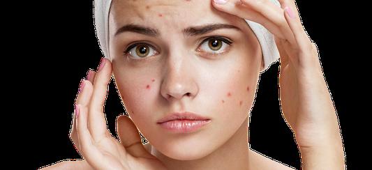 Akne – Folge von Hormonüberproduktion Als eine der Hauptursachen für Akne wird immer wieder eine Überproduktion von Androgenen ins Feld geführt.