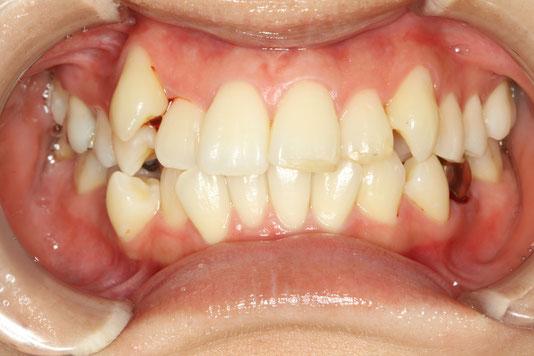八重歯の歯茎の腫れ