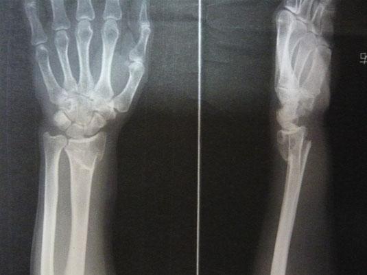 外傷症例の写真