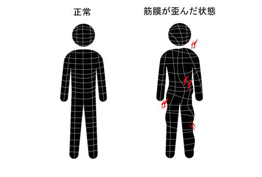 筋膜が歪むと骨格が歪みスタイルが崩れる。