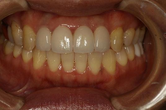 精密審美歯科 治療後