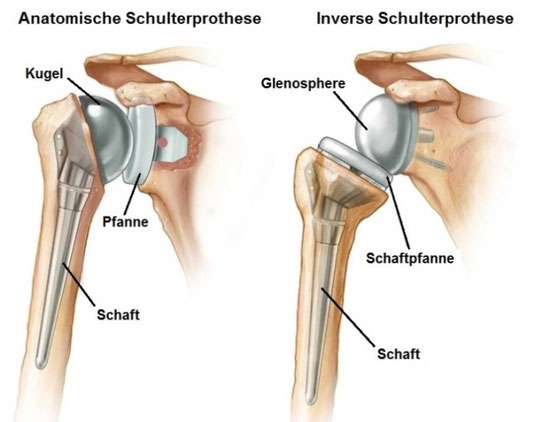 Links: Anatomische Schulterprothese bei intakter Rotatorenmanschette.  Rechts: Inverse Schulterprothese.