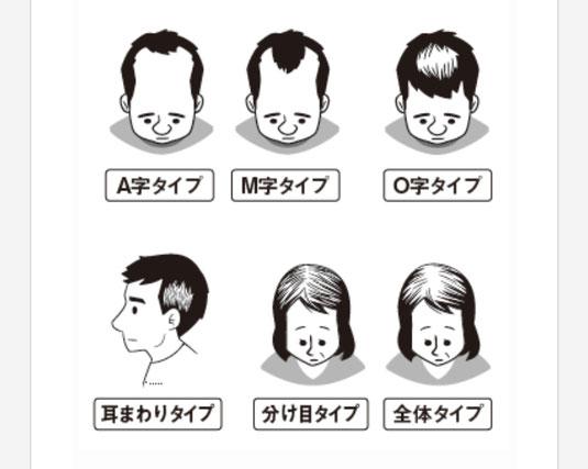 パターンのある脱毛症画像