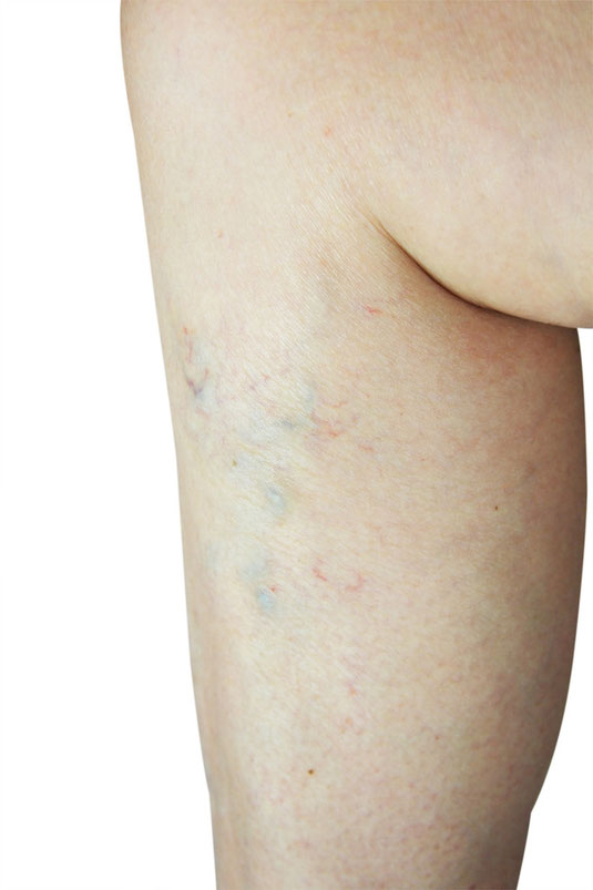 Leg swelling is a very common symptom of vein disease and venous insufficiency. When the valves in the legs don't work properly the venous system increases in pressure and causes the leg and ankles to swell.
