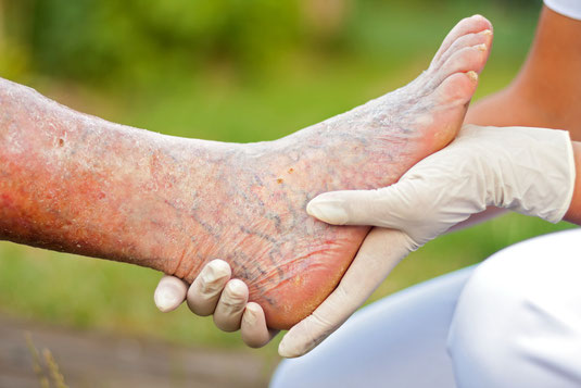 Burning, itchy skin can be caused by severe and moderate venous insufficiency. Left untreated the disease process can increase in severity resulting in ulceration of the skin.
