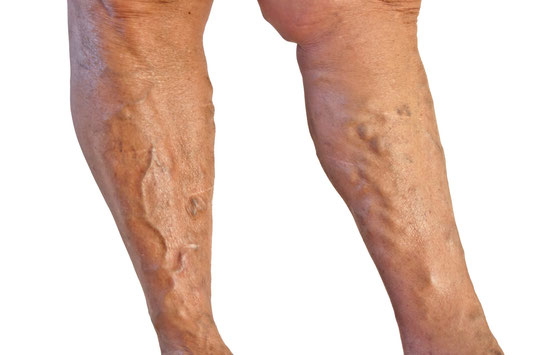 Varicose vein treatment in Naples, Bonita Springs and Fort Myers, Florida. Dr. Joseph Magnant and his staff of specialists provide comprehensive vein treatment for varicose veins and spider veins.