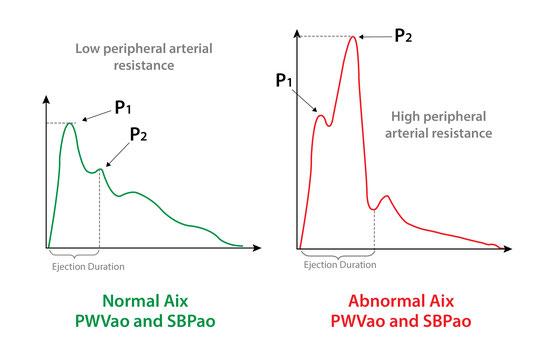 pulse wave analysis