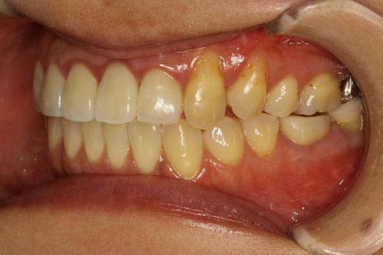 八重歯ではなく歯茎が下がっている