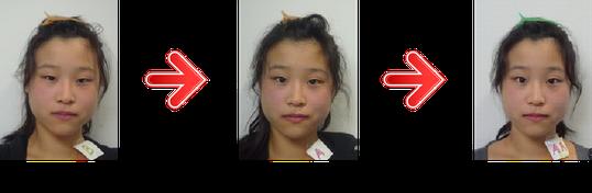 お顔の左右非対称になり、目も大きくなり小顔になった患者様