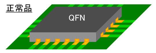 QFN実装正常品