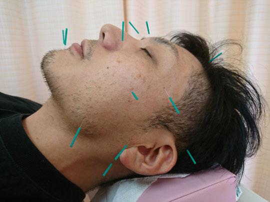 顔鍼【美容鍼灸(美顔鍼)】
