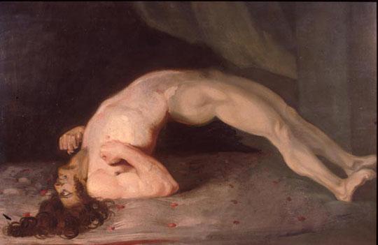 Spasmes musculaires chez un patient atteint de tétanos. Peinture de Sir Charles Bell, 1809. Source: wikipédia.