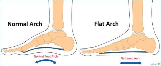 足底筋膜炎(かかとの痛み)