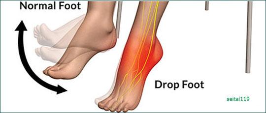 足首を持ち上げる筋力の低下や麻痺
