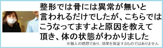 足の付け根が痛い奈良県大和高田市の女性