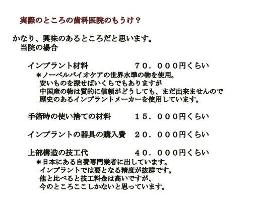 徳島 インプラント 値段 歯科 歯医者 専門医